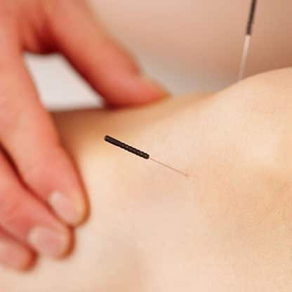 Acupuncture | Physio Home Visits | Physiotherapy | Osteopath | Hertfordshire | Buckinghamshire